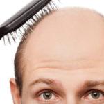 Baş belası saç dökülmesi