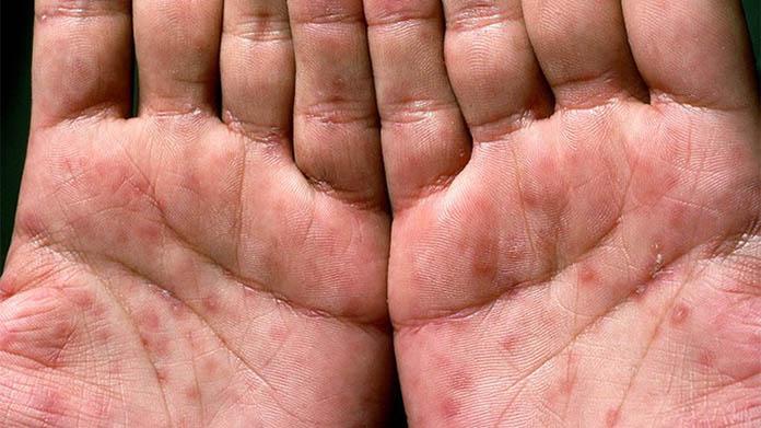 Frengi hastalığı nedir, tedavisi nasıldır?