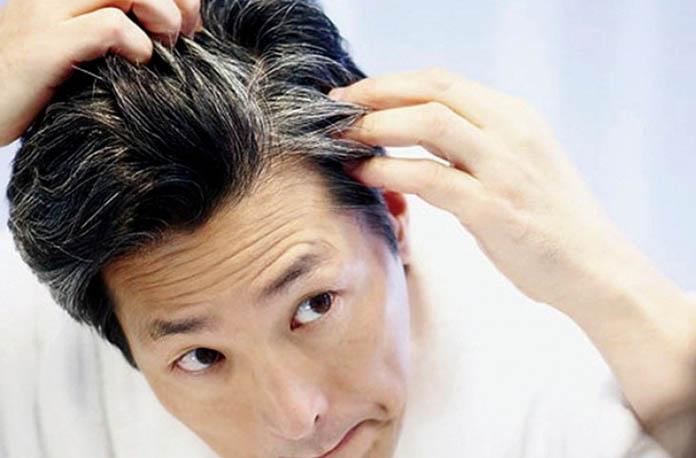 Saç beyazlamasına iyi gelen yöntemler nelerdir?