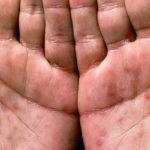 Frengi(sifiliz) hastalığı nedir?