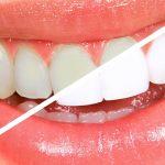 Evde doğal yöntemlerle 5 diş beyazlatma tekniği