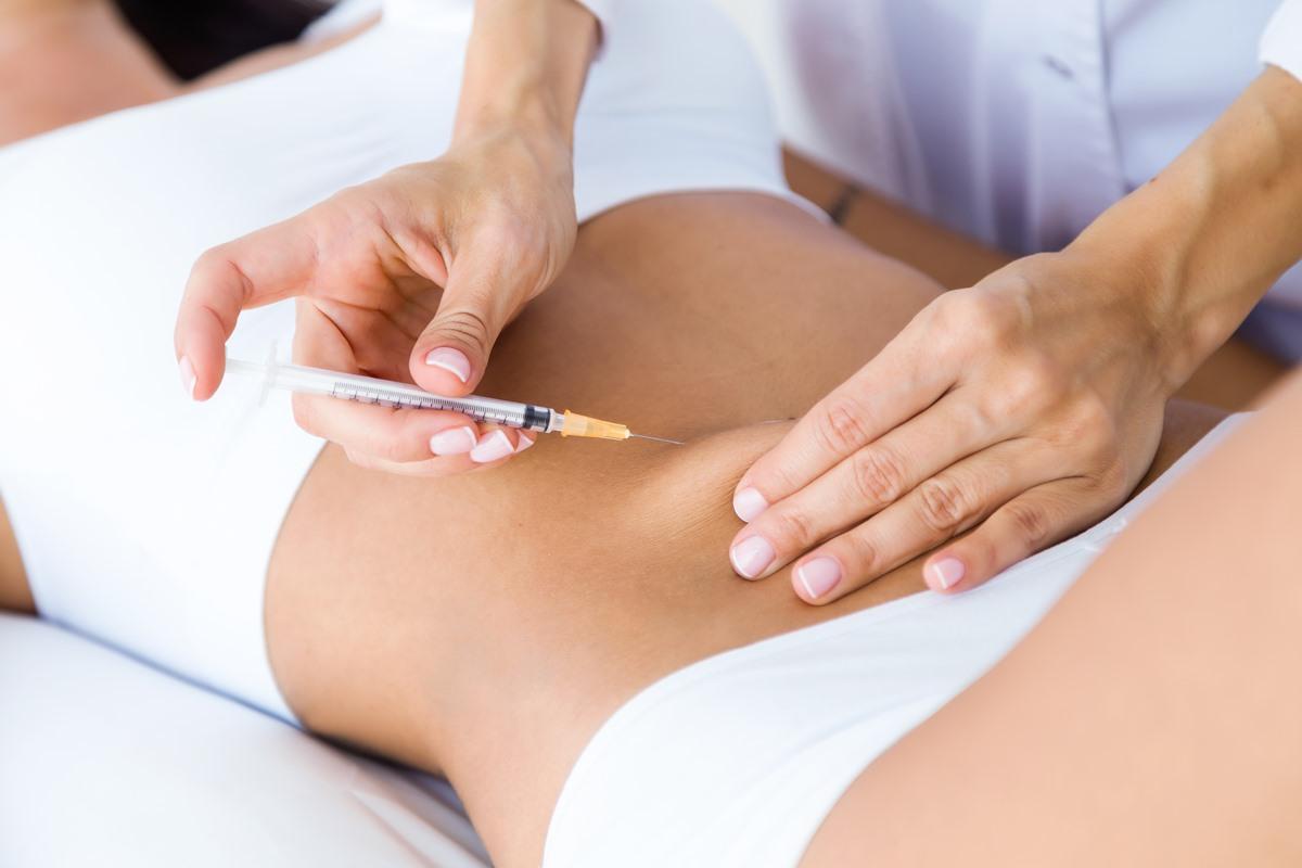 Liposuction nedir?